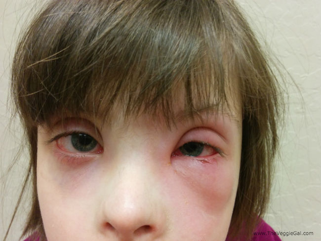 Chronic eye infection of left eye Down syndrome