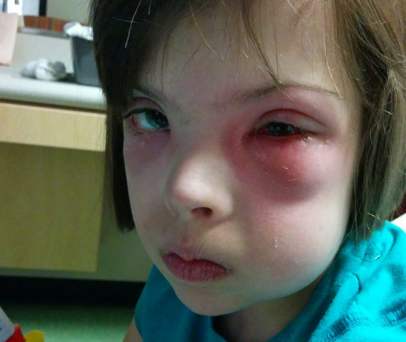 Chronic Eye Infections and Medical Treatments Part 1